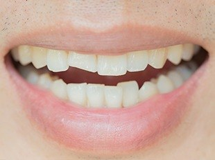 Closeup of chipped front tooth