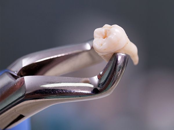 Clasp holding extracted tooth