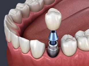 Animation of dental implant supported crown placement