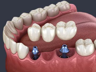 Animation of dental implant supported bridge placement