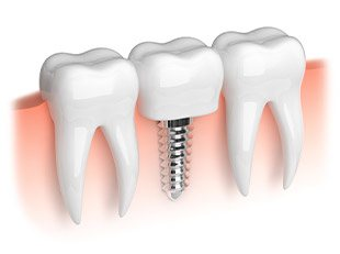 Animation of mini dental implant supported dental crown