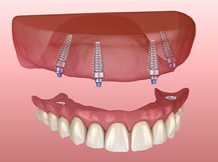 Animation of All-on-4 denture placement