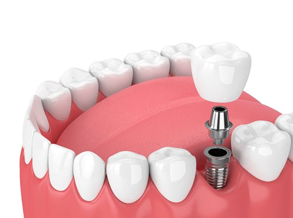 3D illustration of implant, abutment, and crown
