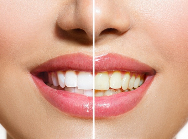A before and after image of a person's teeth after undergoing in-practice whitening