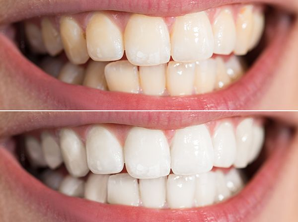 Teeth before and after whitening treatment