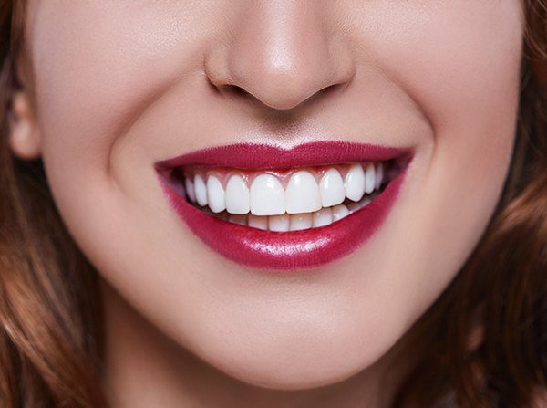 Closeup of picture perect smile