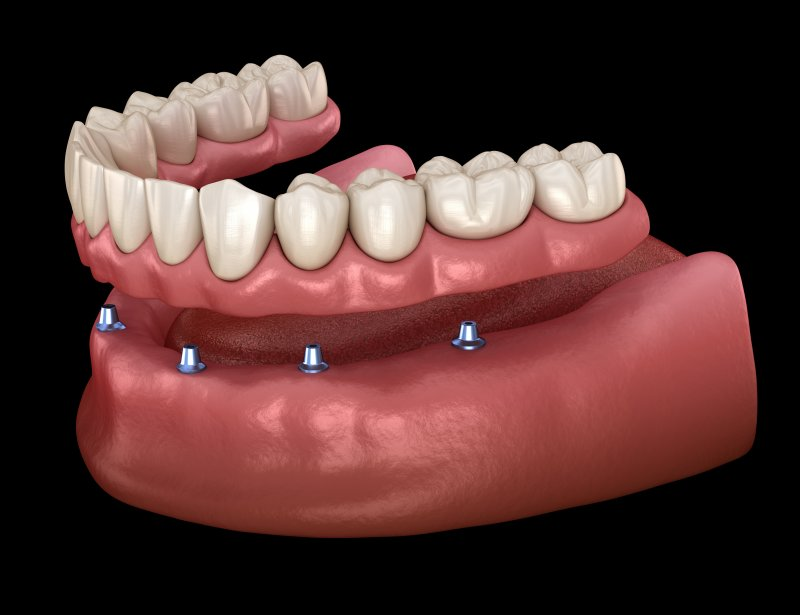 Illustration of dentures being placed on implants