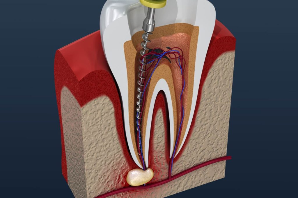Illustration of a root canal