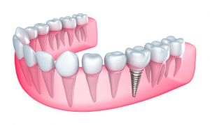 Dental implants in Leesburg are the key to oral health when you have missing teeth.